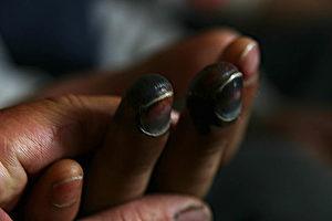Erfrorene Finger. (Christian Gatniejewski)