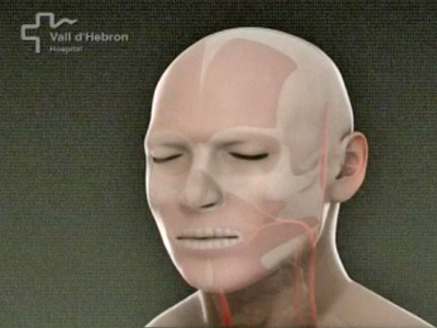Spain: First Face Transplant Completed