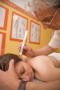 Akupunktmassage verwendet keine Nadeln. Dies bedeutet: Keine Nadelangst und keine Verletzung der Haut.