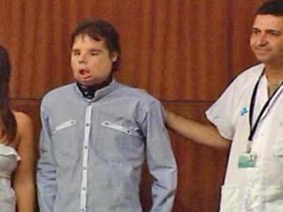 Barcelona: Worlds First Full Face Transplantee Goes Public