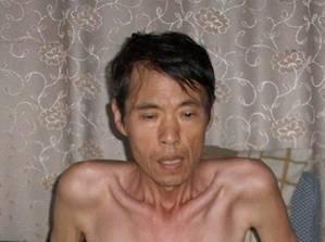 Eine Woche vor seinem Tod wurden erschreckende Bilder von Yunping Zhang gemacht. Er praktizierte Falun Gong und wurde in Chinas Arbeitslagern gefoltert. Er starb an den Folgen der Folter am 6. September 2010.