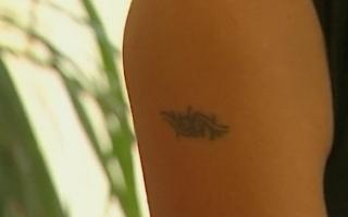 Tattoo Laserentfernung