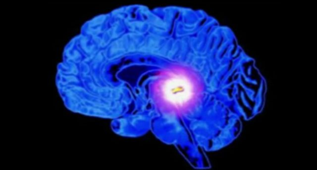 Unser Gehirn, ein Quantenprozessor? - oder \