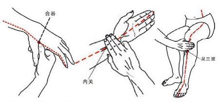 In der Zeichnung oben links wird der Neiguan-Akupunktur Punkt gezeigt. Unten rechts: der Hegu-Punkt. Unten links: der Zusanli-Punkt.