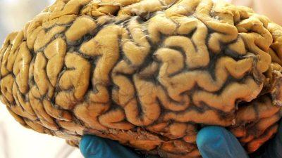 Fast alle Gehirne haben männliche und weibliche Aspekte