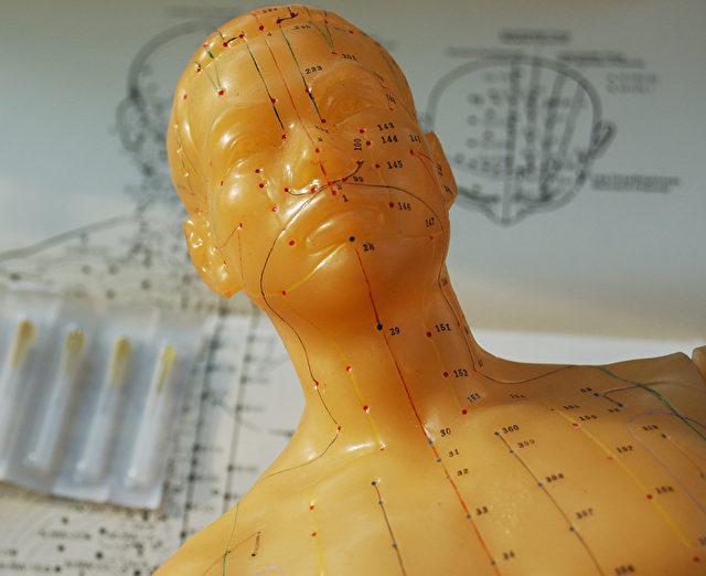 Ein Akupunkturmodell, auf dem die Akupunkturpunkte dargestellt sind, wie sie an der Oberfläche entlang von Energiemeridianen in Reihen verlaufen. Nach der Chinesischen Medizin spiegelt sich jede Gesundheitsstörung oder Schmerz auch als Energieungleichgewicht in den Meridianen wieder. Durch Akupunkturnadeln oder Hitzezufuhr an den Akupunkturpunkten lassen sich solche Energieungleichgewichte wieder ausgleichen und die Beschwerden oder die Gesundheitsstörung heilen. Foto: Cat Rooney/The Epoch Times