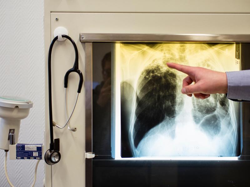 Tuberkulose an Dresdner Gymnasium: Schule wegen tödlicher Krankheit geschlossen