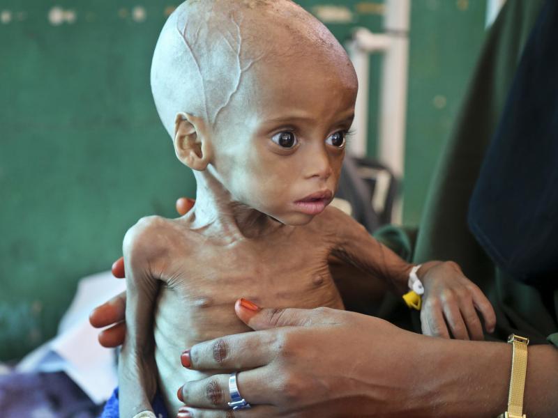 UNO- und EU-Bericht: Bis zu 108 Millionen Menschen waren 2016 vom Hungertod bedroht