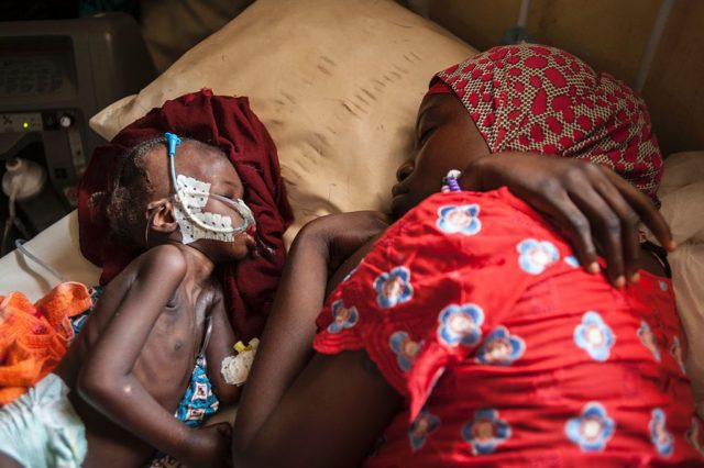 Hungersnot in Afrika Foto: STEFAN HEUNIS/AFP/Getty Images