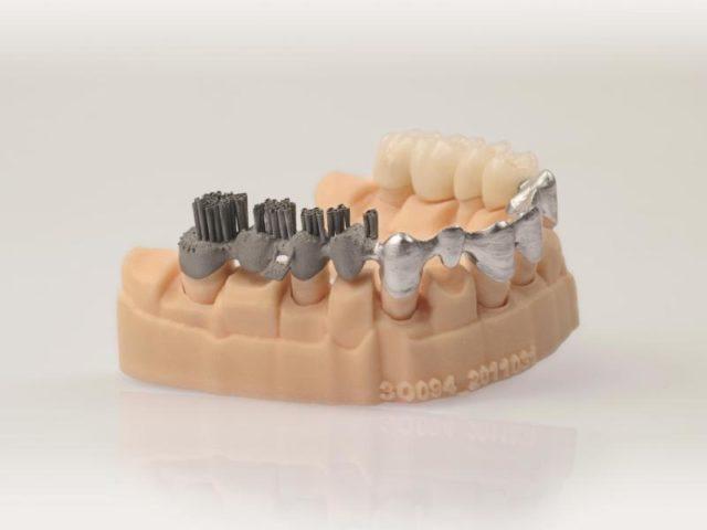 Das undatierte Handout-Foto zeigt verschiedene Verarbeitungsschritte einer additiv gefertigten Zahn-Brücke. Foto: EOS GmbH/dpa