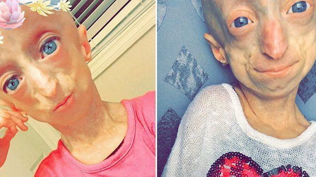 Black Kid With Progeria