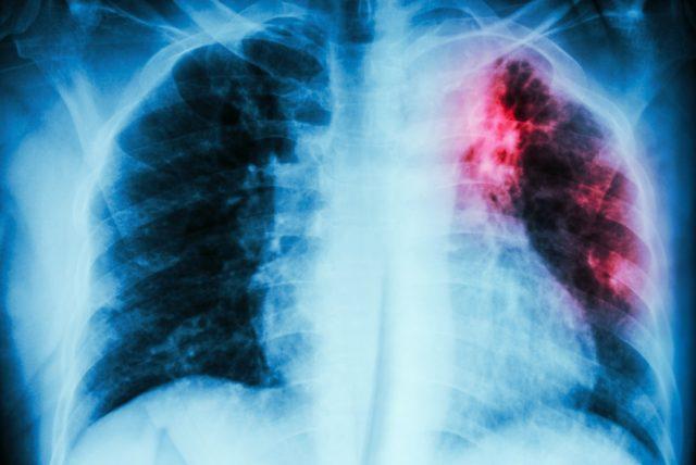 Dresden: Zwölf weitere Schüler an Hoga-Schule mit Tuberkulose infiziert