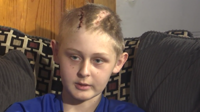 Hirntot und doch wieder aufgewacht: 13-Jähriger verblüfft die Ärzte