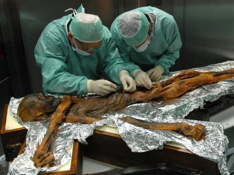 Neue Studie: Darmflora von Gletschermumie Ötzi zeigt, wie ungesund unsere Ernährung ist