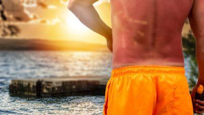 Sonnenbrandgefahr am Wochenende – UV-Strahlung hat nichts mit Temperaturen zu tun