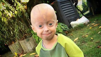 """Schicksalsschlag Progerie – Eine Familie kämpft für Luke (5): """"Wer ihn kennt, macht ihn nicht fertig"""""""