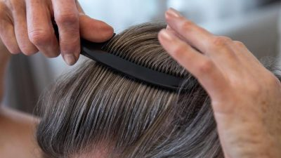 Haartransplantation Istanbul: SOS für Haarausfall-Patienten