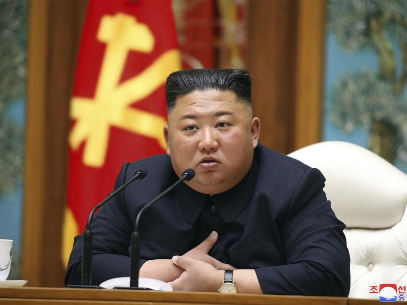 Kim Jong-un nach Operation in kritischem Zustand