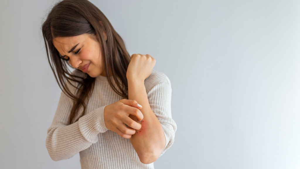 Pseudo-Frostbeulen, Bläschen und Nekrosen: Ärzte berichten von auffälligen Hautveränderungen bei COVID-19 Infizierten