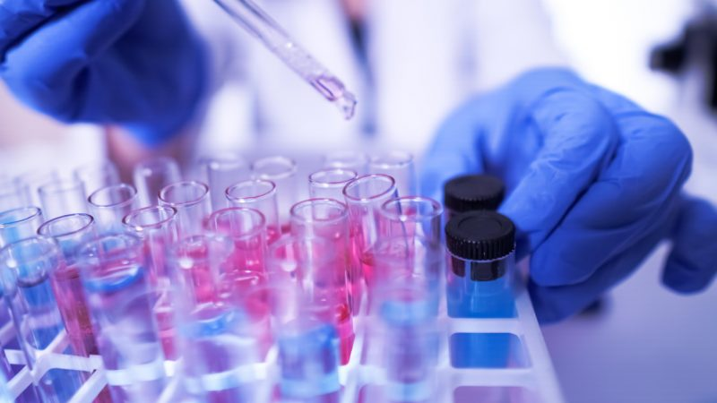 Steigende Testzahlen brachten die Labore an ihre Grenzen.