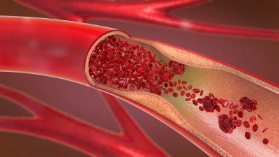 Tödliche AstraZeneca-Thrombosen: Deutscher Forscher entwickelt Test- und Behandlungsmethode