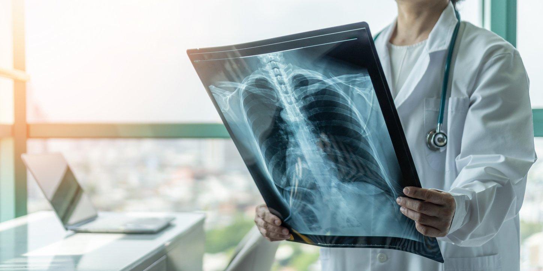 Trotz COVID-19: Anzahl akuter Atemwegserkrankungen sinkt 2020 um über 80.000 Fälle