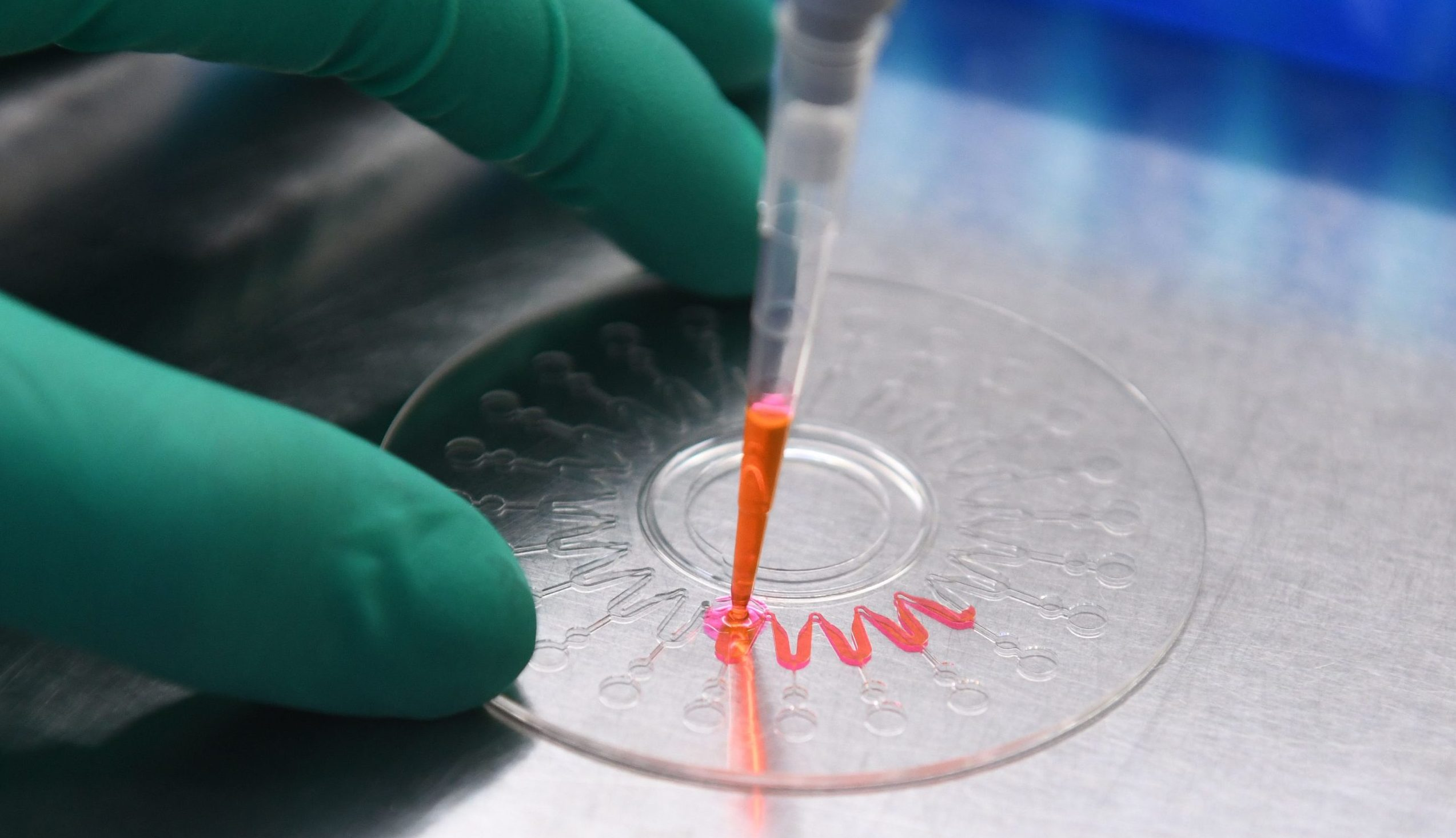 """Laborthese """"zu umständlich"""": Charité-Virologe Drosten glaubt nicht an Virus aus Labor"""